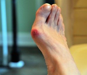 Cure Bunions With These Natural Remedies and Avoid Surgery