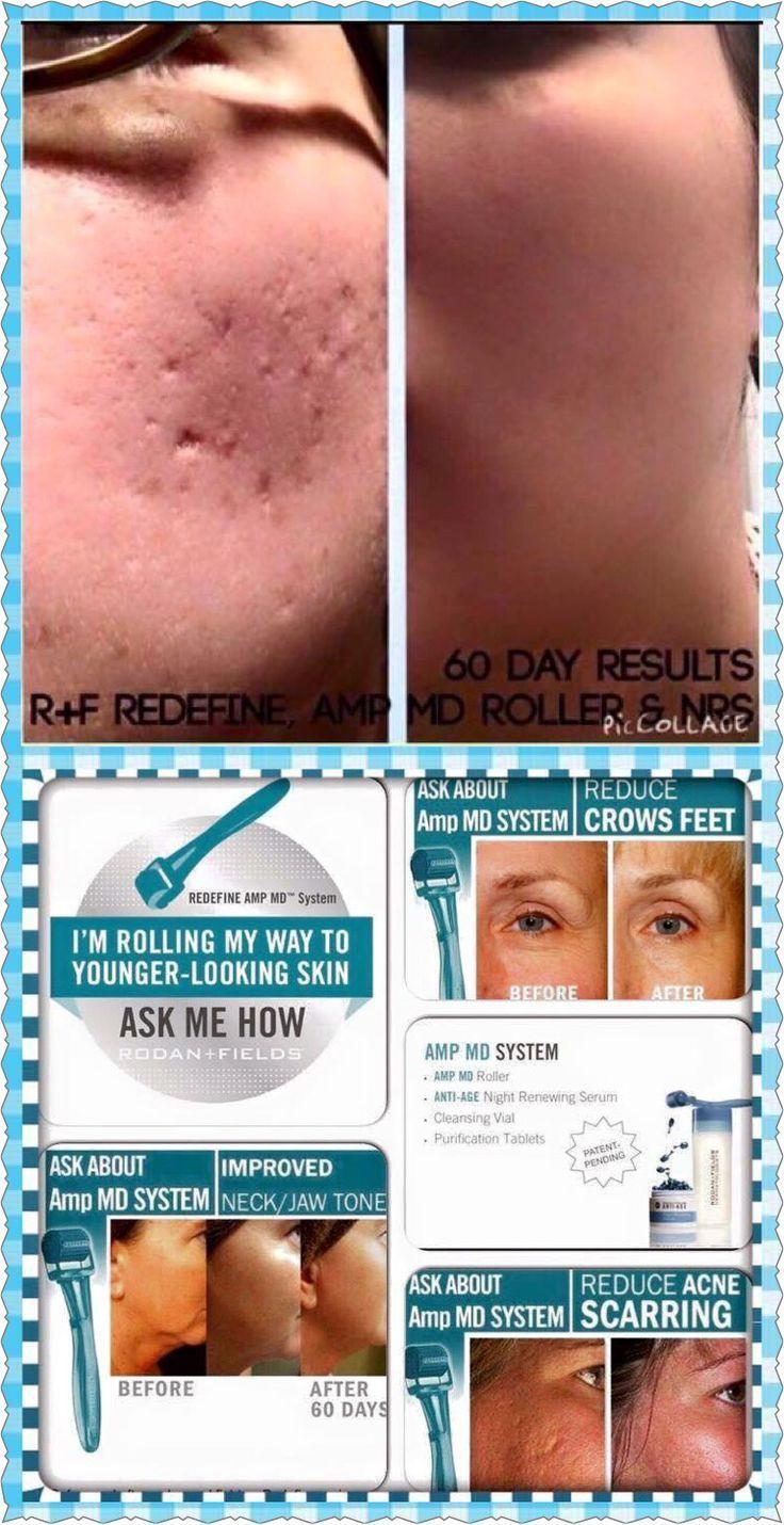 Acne scar removal panosundaki pin