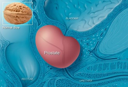 The prostate can grow larger as men age, sometimes pressing on the bladder or urethra and causing symptoms similar to prostate cancer. This is called benign prostatic hyperplasia (BPH). It's not cancer and can be treated if symptoms become bothersome. A third problem that can cause urinary symptoms is prostatitis. This inflammation or infection may also cause a fever and in many cases is treated with medication. For more information please visit: www.prosman.in