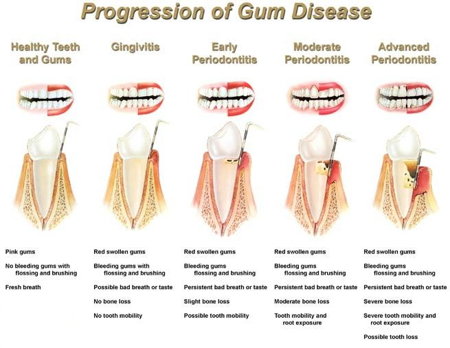 progression-of-gum-disease chart. Visit Newton Dental Associates, one of Boston's premier dental practices for you periodontal needs.