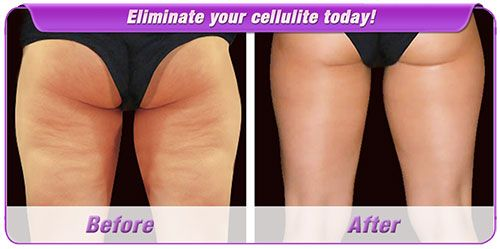 Eliminate your cellulite today by using one of the most powerful product available.