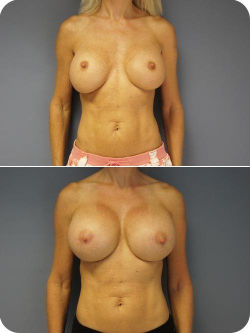 silicone breast implant record