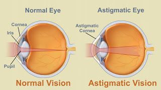 what is an #astigmatism Astigmatism is a condition of the eye that causes either blurred vision or a feeling that each eye sees a slightly different objects. A structural problem - usually an unevenly curved cornea or lens - causes light entering the eye does not focus properly #astigmatism #contacts , astigmatism test, what is an astigmatism, how much do contacts cost, air optix astigmatism, cheap contacts online, colored contacts cheap, air optix contacts, proclear contacts,