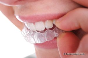 Soft-Splint-Dental-Guard | mineral deficiencies and other reasons for tooth grinding