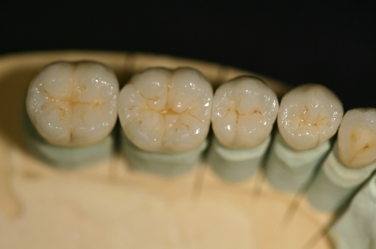 Porcelain Fused to Metal (PFM) restorations are still the most prescribed restorative treatment alternative to date. Pinned By www.giedentallab.com