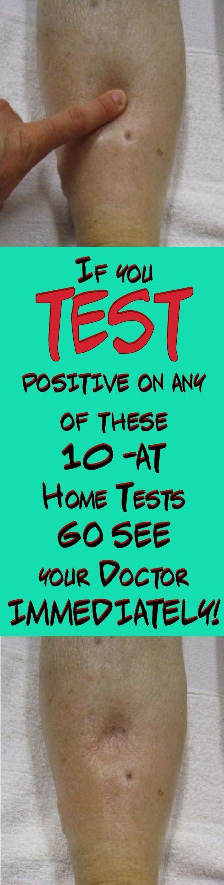 GO SEE YOUR DOCTOR IMMEDIATELY IF YOU TEST POSITIVE ON ANY OF THESE 10 AT-HOME TESTS…