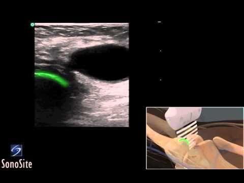 Guide 3D: Esame ecografico della cisti di Baker - Sistema a ultrasuoni S...