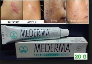"1 Tube X 20g Mederma GEL Acne Scar Removal Keloid Skin Care Treatment Burn Keloid Acne Scar -- Want additional info? Click on the image. ""Amazing all-natural clear skin breakthrough permanently eliminates acne without drugs, creams or over the counters. S"