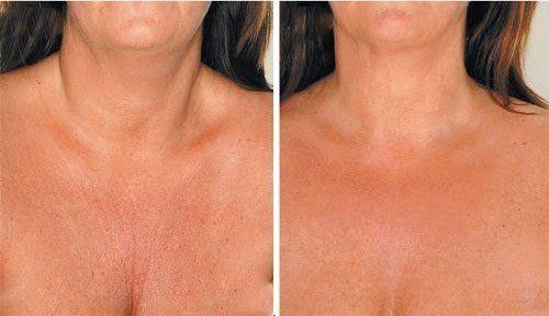 Морщины на шее и в области декольте огорчают и мешают надеть платье с красивым вырезом или другой наряд. С течением времени кожа теряет эластичность и тонус, что вместе с другими факторами способствует появлению преждевременных морщин.
