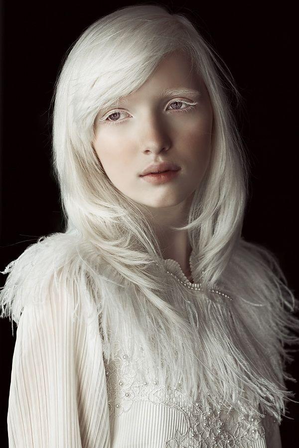 Albino girl — 9