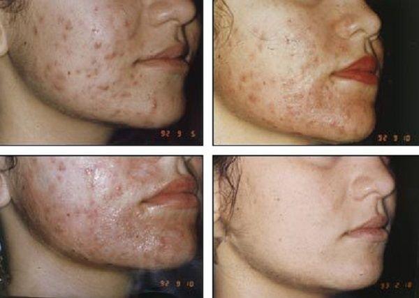 """Medizinische Peelings gehören zu den Multitalenten unter den Schönheitsanwendungen. Vorweg, Peelings für die Heimanwendung, so genannte mechanische Peelings sind nicht mit medizinischen (chemischen) Peelings vergleichbar. Diese funktionieren nach dem """"Abschleif-Prinzip"""". Verschieden grobe Schleifkörperchen rubbeln Hautschüppchen an der Hautoberfläche weg und verleihen der Haut damit kurzfristig einen frischeren Teint. Daraus ergeben sich drei verschiedene Behandlungs-Arten. Das…"""