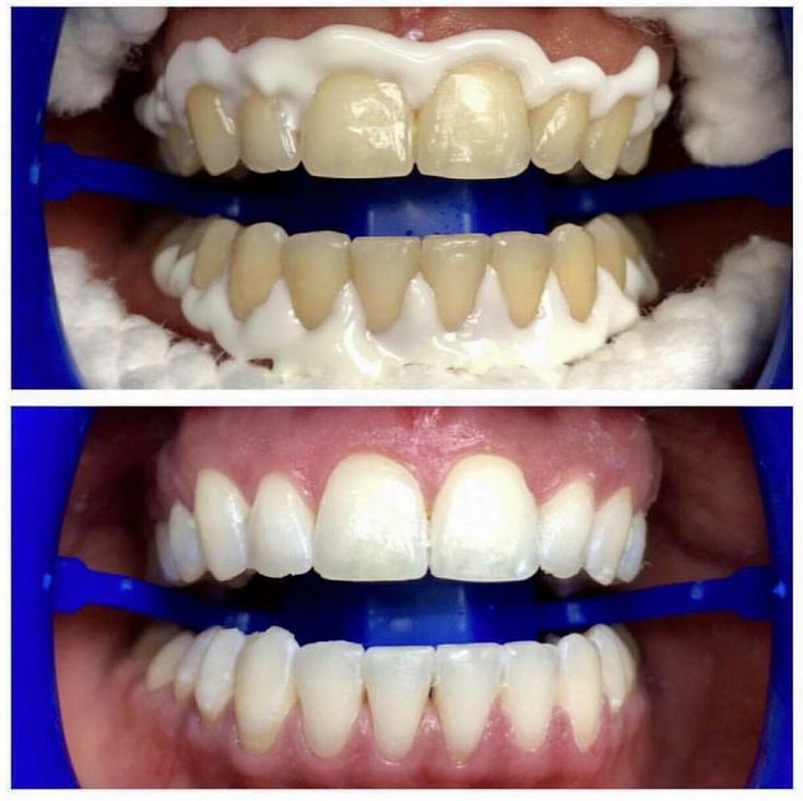 ZOOM WHITENING   Great results within 1 hour Call now to make an appointment (02) 9716 7180