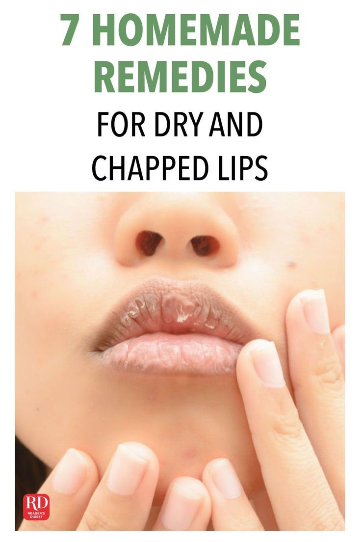 Chapped Lips Chapped Rissige Lippen Levres Gercees Labios