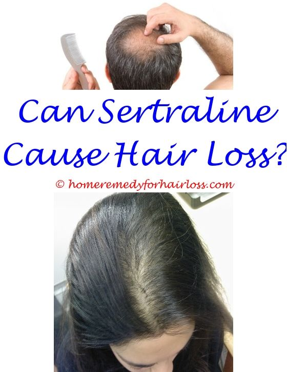 green tea hair loss dht - low testosterone cause hair loss.malunggay shampoo for hair loss herbal treatment for hair loss in india biotin biomed forte hair loss 5754443244