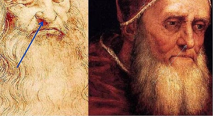 Detail of Red Chalk Drawing (attributed to Leonardo da Vinci)-to: Detail from Portrait of Pope Julius II (Raffaello Sanzio)