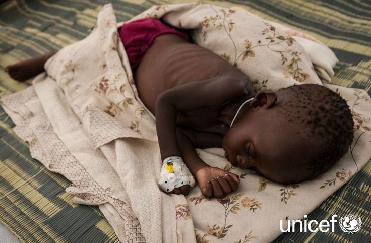 GŁÓD I NIEDOŻYWIENIE: Jeszcze w tym roku w Sudanie Południowym 50 tysięcy dzieci umrze z głodu, jeśli pomoc humanitarna nie dotrze na czas. Pomóż na www.unicef.pl/sudan.