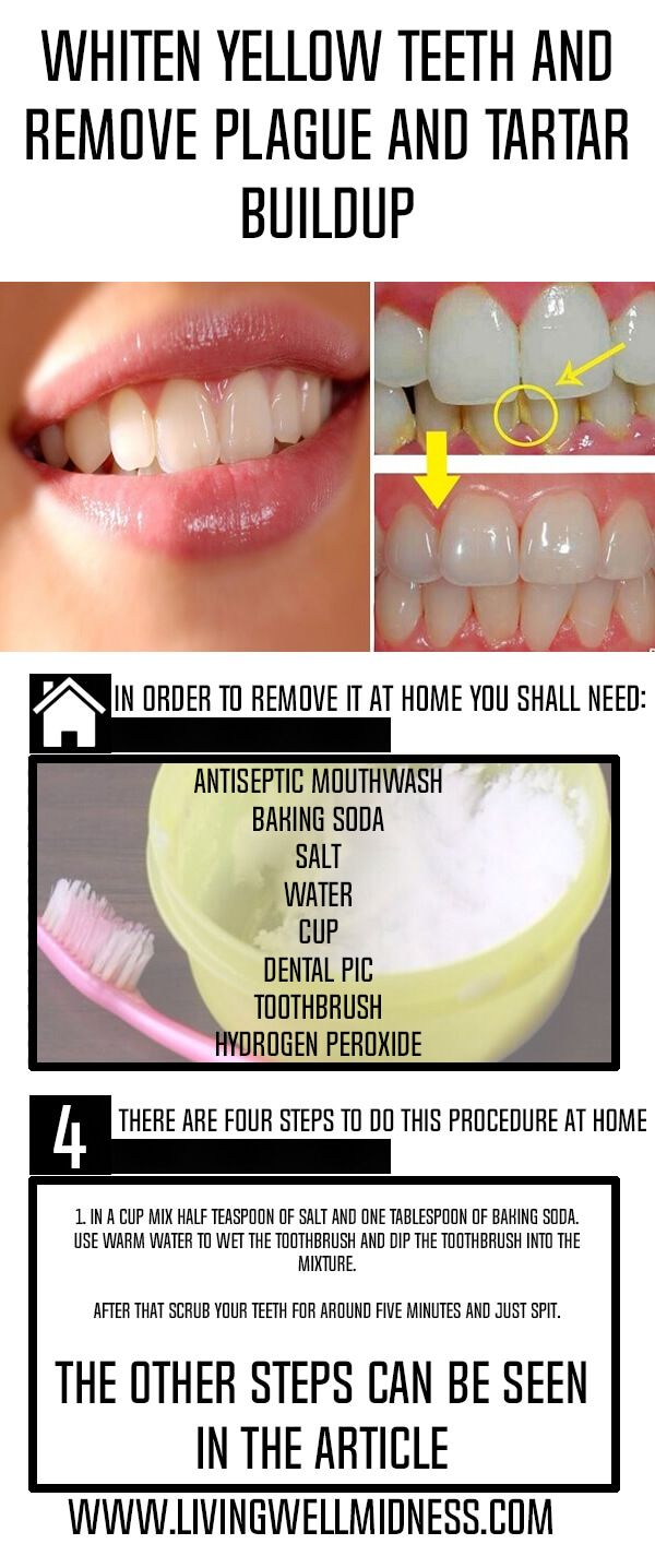 Whiten Yellow Teeth and Remove Plague and Tartar Buildup - Living Wellmindness