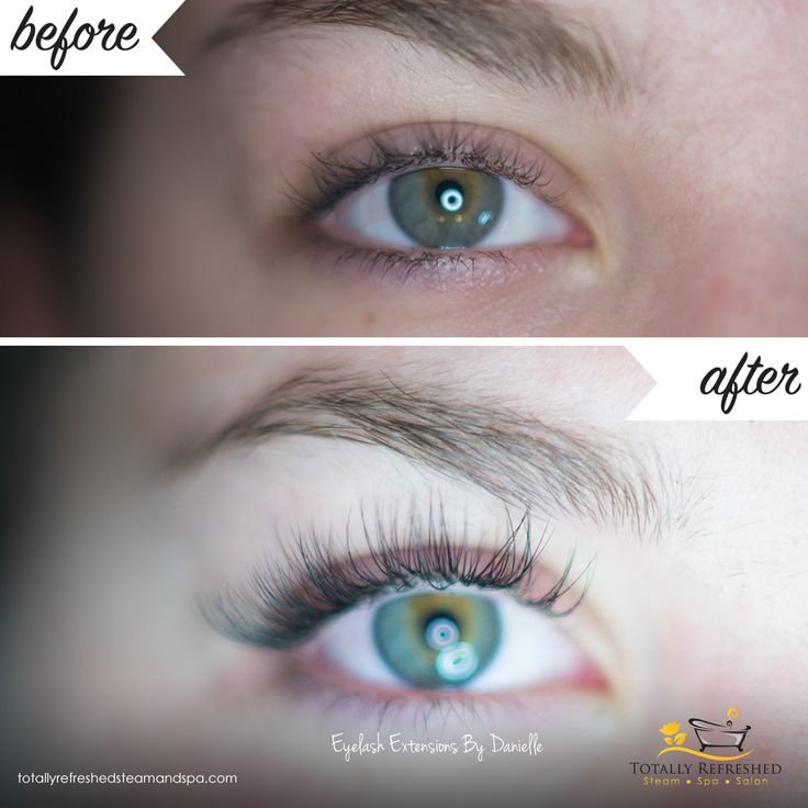 Before & After Hybrid Eyelash Extensions by Danielle - Eyelash Extensions - Lash Boosting - Lashes  - Red Deer - Totally Refreshed Steam Spa Salon