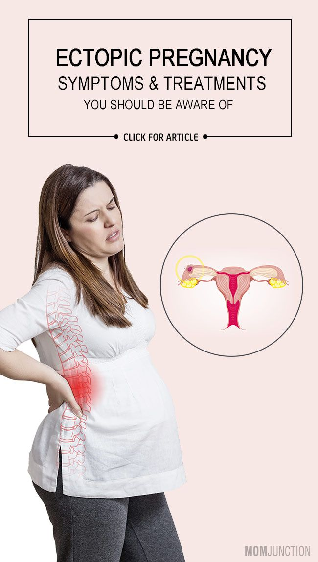 Ectopic Pregnancy - 4 Symptoms & 3 Treatments You Should Be Aware Of