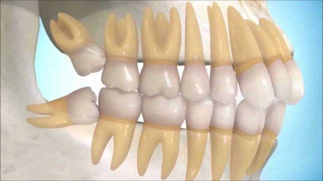 Esta es la estafa Dental más grande del mundo de todos los tiempos: Los odontólogos lo saben pero a ti te dicen otra cosa. #Comparte para frenar esta falsa!