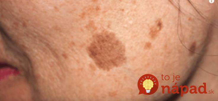 Na ľudskej pokožke sa pôsobením rôznych faktorov môžu objaviť škvrny, ktoré sa farbou odlišujú od zvyšku pokožky a nepôsobia esteticky. Niektoré škvrny sa objavujú vplyvom nadmerného vystavovania sa slnečnému žiareniu, iné pribúdajú s vekom a niektoré môžu súvisieť so zhoršenou funkciou telesných orgánov. Zatiaľ čo niektoré tipy nepekných škvŕn je možné odstrániť, iné si vyžadujú...