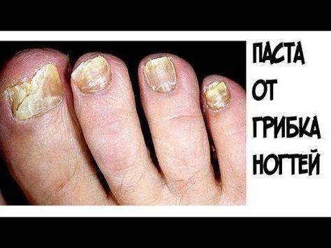 ШОК!!!Эта паста помогла мне БЫСТРО избавиться от грибка ногтей - YouTube