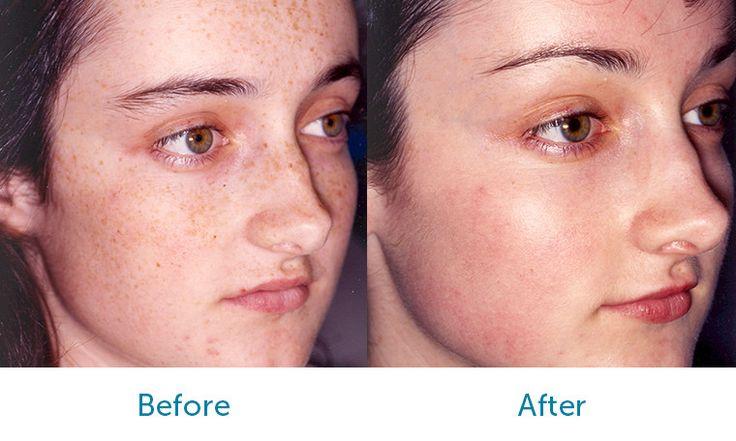 Chemical Peels - Patient CC Before & After Medium Depth Chemical Peel