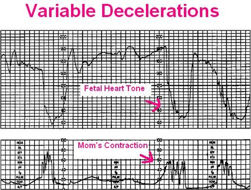 This article is about how to monitor fetal heart tone of early, late, and variable decelerations during labor. I have been studying this in nursing school and at first I thought this was very hard …