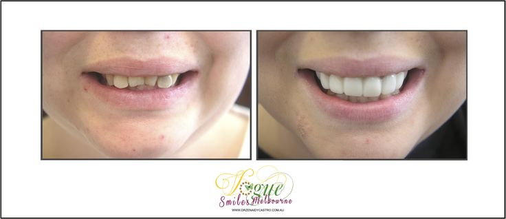 Tired of hiding your smile from others? Wish you could finally do something about your discolored, cracked, or missing teeth? But can't afford expensive works? Ask about our SNAP ON SMILE. Vogue Smiles Melbourne can help you improve your smiles.  http://drzenaidycastro.com.au/, http://melbournecosmeticdentistry.com.au/, http://dentist-in-melbourne.com.au/, https://www.youtube.com/channel/UC0dLOqSdLKJqrrzuP3axNxA, https://heartandsoulwhisperer.com.au/
