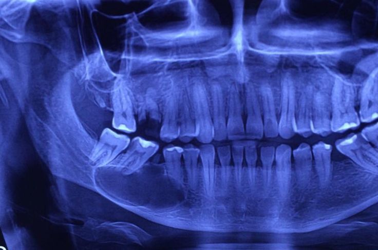 what is your differential diagnosis and treatment plan of this mandibular lesion