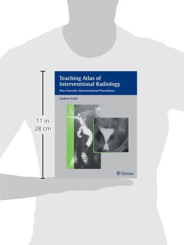 Teaching Atlas of Interventional Radiology: Non-Vascular Interventional Procedures