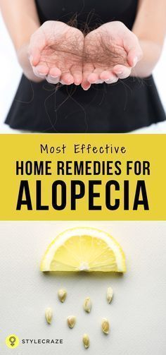 There is no cure for alopecia but there are some ways to keep these under check, and they are surgeries for those with baldness too. Let first have a look at the different types before we run to the alopecia hair loss treatment.