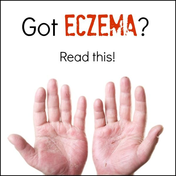 """Book Review: The Eczema Cure; Heal from the Inside Out with Real Food, by Emily Bartlett -- """"The truth is: There is NO medical cure for eczema. FACT: Nutrient-dense, real food can cure eczema by healing your body from the inside out."""" 