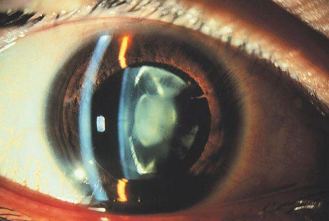 Congenital cataract, eye disease
