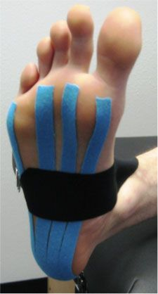 The injury itself comes from a muscular imbalance in the lower leg, ankle, and foot. The imbalance comes from a weak tibialis anterior (the muscle on the front of your shin) and plantar fascia, as well as a spastic or tight solues and gastrocnemius (the muscles of the calf). This imbalance causes increased tension on the Achilles tendon, which pulls on the plantar fascia causing the stretching and tearing of the muscle. As the micro tears set into the muscle, pain develops.