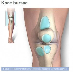 What is the most effective way to treat knee bursitis? Is there a way to prevent it in the future?