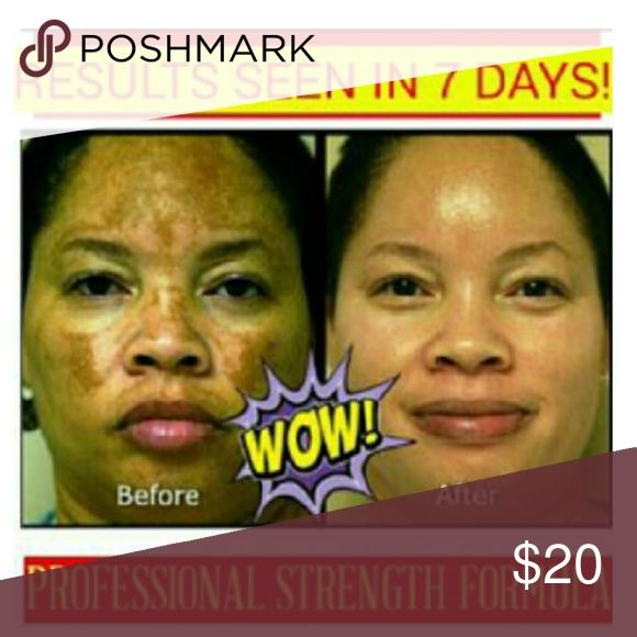ACNE SCARS & DARK SPOTS LIGHTENING CREAM 2 OZ. JAR.   EFFECTIVE Skin Lightening Cream FOR ALL SKIN TYPES. COMPLETELY ERASES ACNE SCARS, DARK SPOTS AND SKIN IMPERFECTIONS.  PRODUCT CAN BE USED ON BODY & FACE!  High quality moisturizing ingredients + potent skin bleaching active ingredients.  Boost skin clarity and tone.  Erases Dark Spots, Acne Scars, Dark Underarm & Knees, Stretch Marks, Dark Circles, Sun Damaged Skin, Melasma, Freckles, Dark Spots, Private Parts.   BEGIN TO SEE RESULTS…