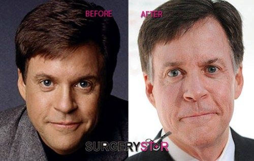 Bob Costas Plastic Surgery Before And After