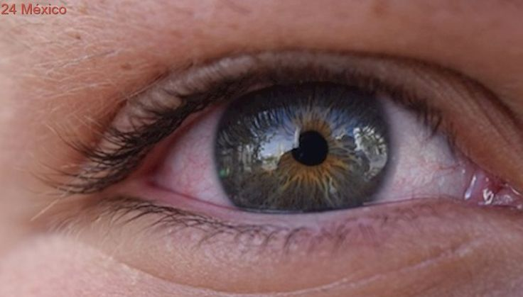 Ojos rojos o destellos en visión podrían ser síntomas de glaucoma: IMSS