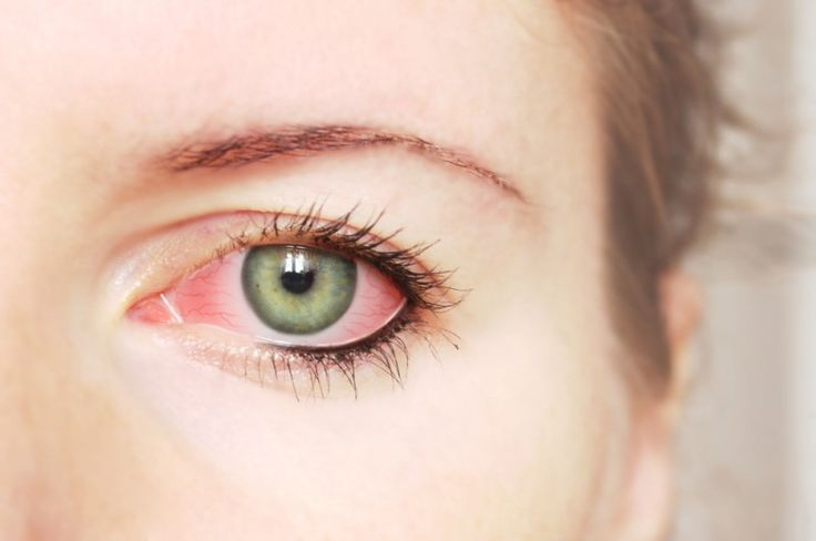 Top 5 Home Remedies for Sore Eyes