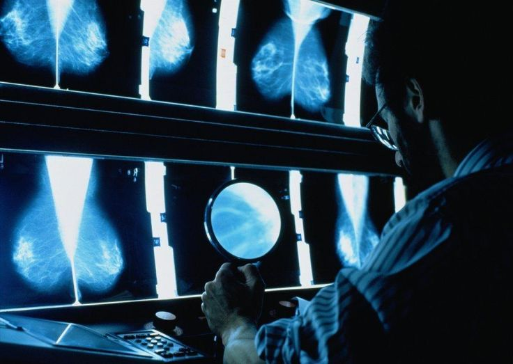 #New method for predicting breast cancer risk suggests about 30% of cases could be prevented - Los Angeles Times: Los Angeles Times New…