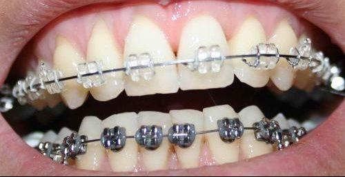 bridge dentaire est une prothèse fixe  pour remplacer une dent . on utilise de la ceramique.  http://devis-mutuelle-dentaire.fr/Prothese-dentaire.aspx