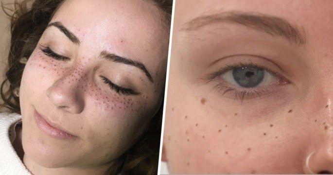 Η τελευταία τάση στη γυναικεία μόδα είναι να χτυπάνε τατού με φακίδες στο πρόσωπο τους