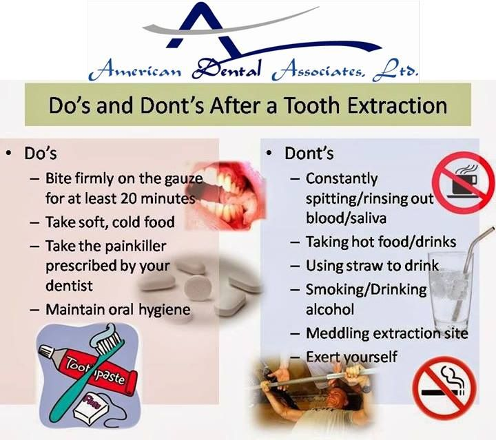 Dos and donts after tooth extraction