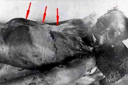 La Montaña de los Muertos III – El pensante
