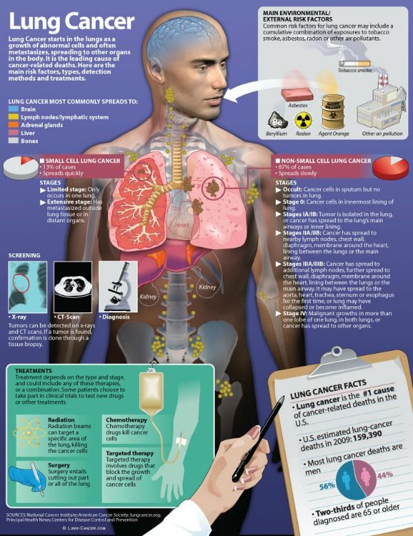 Infographic showing stages of lung cancer, treatment ...