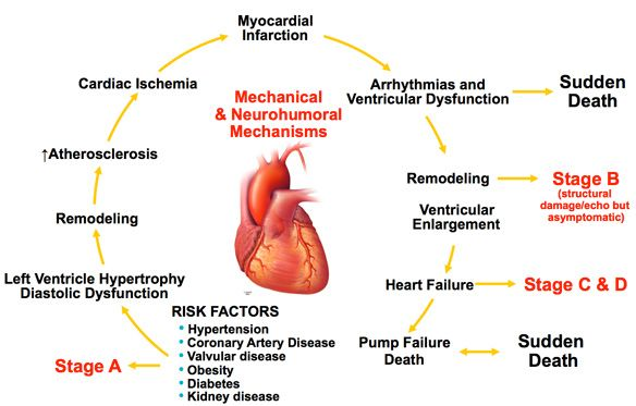 heart failure - Google Search
