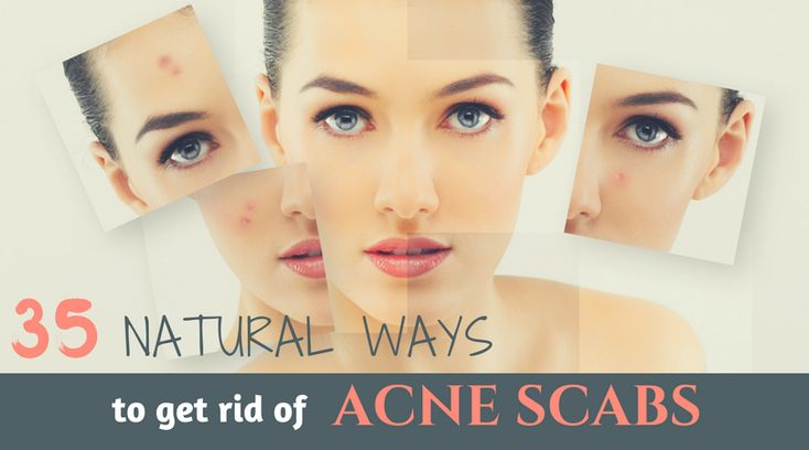 How to Get Rid of Acne Scabs? Here are 35 Scientifically proven Home Remedies to Treat Acne Scabs without Harsh Chemicals,