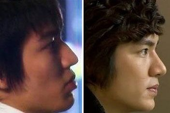 Lee Min Ho Plastic Surgery (A Nose Job Done) Before & After - http://plasticsurgerytalks.com/lee-min-ho-plastic-surgery/