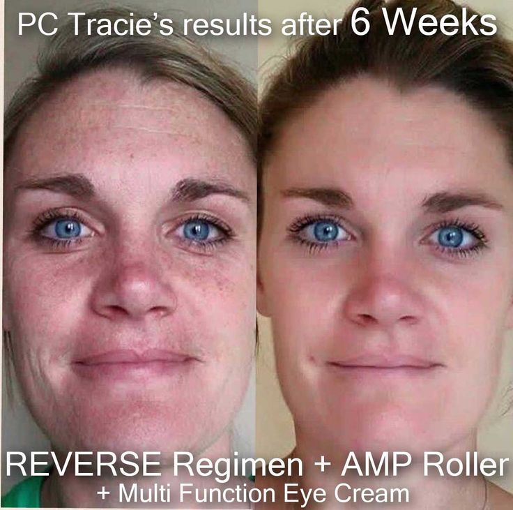 Amazing results after only 6 weeks on Rodan and Fields REVERSE regimen. If you want to get started on your own journey to healthier more vibrant looking skin message me. With our 60 Day Money Back Guarantee what do you have to lose besides those sunspots and wrinkles?  https://michellemj.myrandf.biz/Shop/Product/RVAPS01 #rodanandfields #clearskin